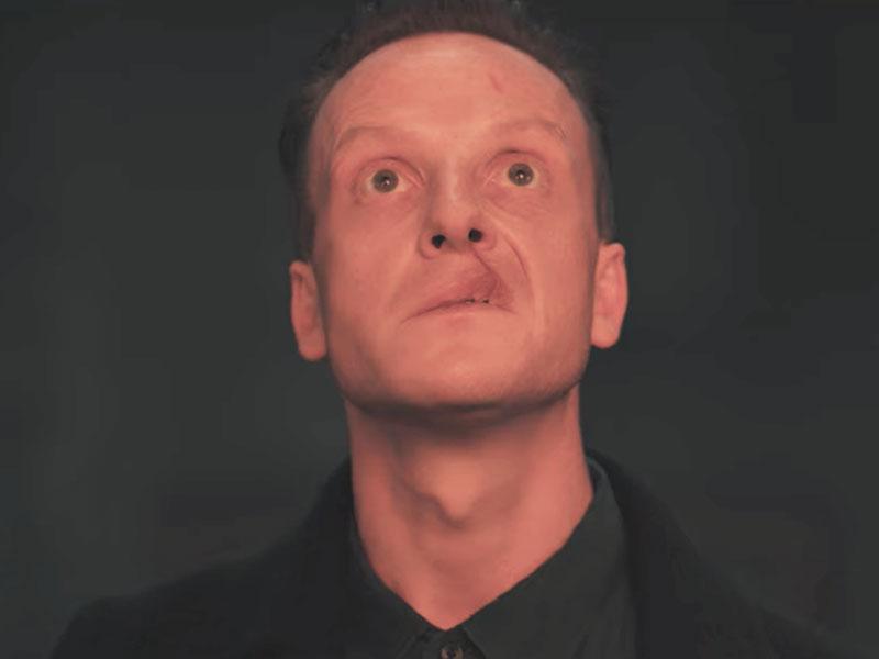 Cleft lip man from Netflix's Dark